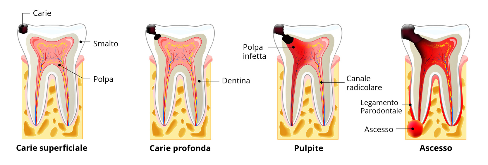 the stages of caries development