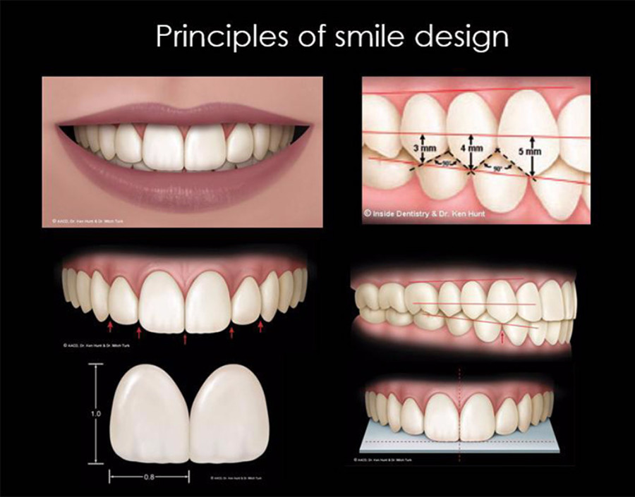 Smile design in Croazia