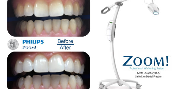 Teeth whitening machine in Croatia
