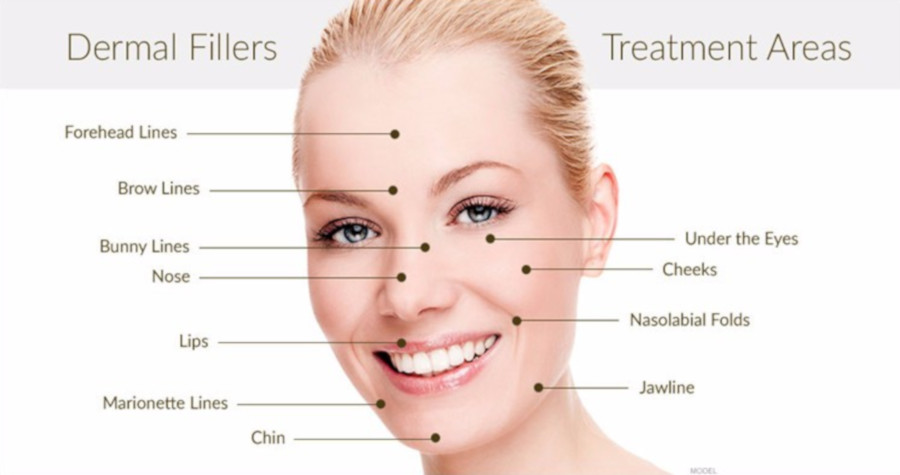 treatment areas of dermal fillers