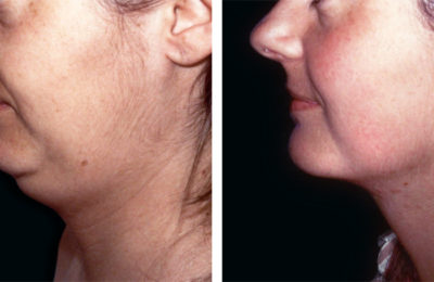 Strengthening the skin of chin and neck